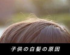 子供 白髪
